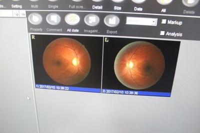Non-mydriatic fundus camera 2